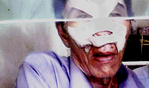 u-than-lwin-in-hospital.jpg